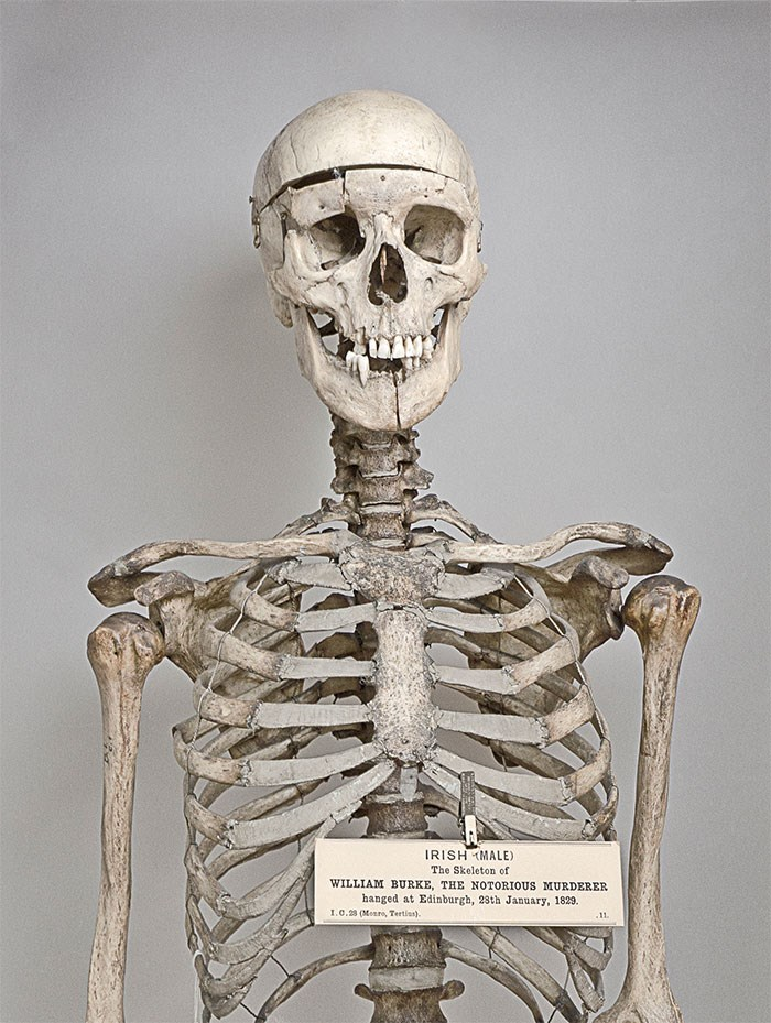 On the orders of the Lord Justice-Clerk, after dissection Burke's skeleton was preserved, 'in order that posterity may keep in remembrance of [his] atrocious crimes'. The skeleton can be seen in the Anatomical Museum at the University of Edinburgh. © The Anatomical Museum at the University of Edinburgh.