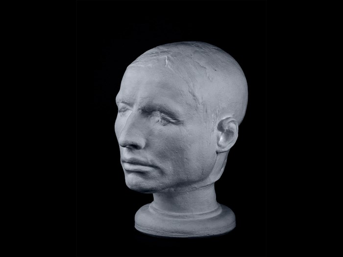 Life mask of Hare, on display in the Anatomical Museum at the University of Edinburgh. No-one is quite sure what happened to Hare after the trial. Rumours circulated that he had escaped to London, where he was thrown into a lime pit and blinded, but it is more likely that he returned to Ireland. © The Anatomical Museum at the University of Edinburgh.