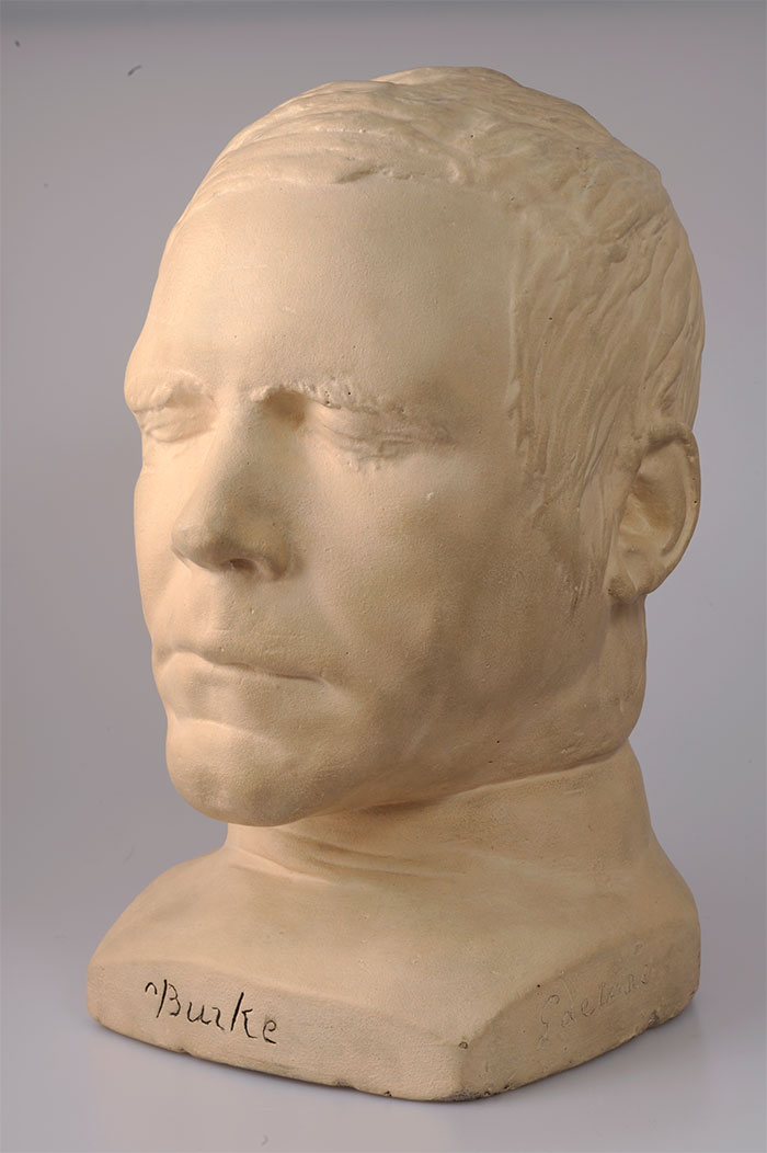 Death mask of William Burke. The mark of the noose can be seen on the neck. © Surgeons' Hall Museums at the Royal College of Surgeons of Edinburgh.