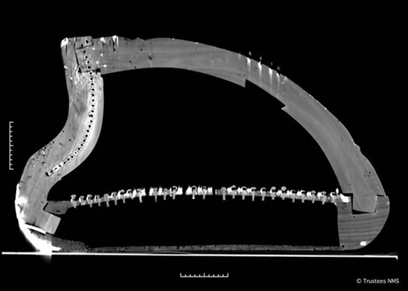 Queen Mary harp CT scan cross-section